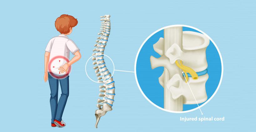 Spine Trauma surgery in jaipur