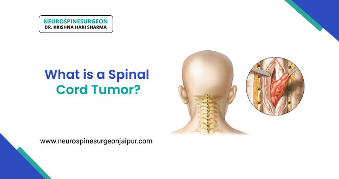 What is the spinal cord tumor?