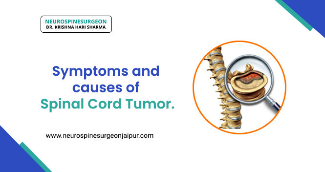 Symptoms and causes of spinal cord tumor