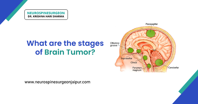 stages of a Brain Tumor