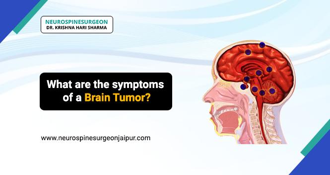 symptoms of a Brain tumor