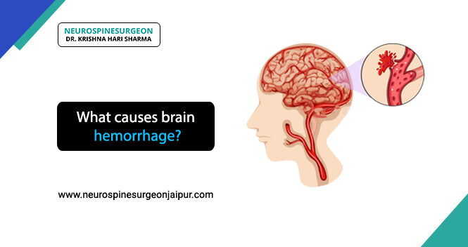 causes of brain hemorrhage