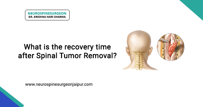 recovery time after spinal tumor removal