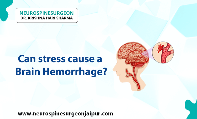 can stress cause a brain hemorrhage