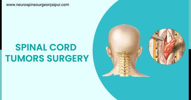SPINAL CORD TUMORS SURGERY