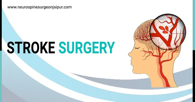 stroke surgery in Jaipur