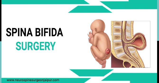 spina bifida surgery in Jaipur